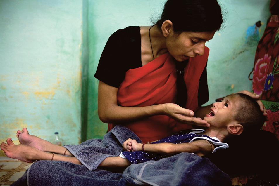Zubin, 3, was born healthy but developed serious physical and neurological deficiencies in her early childhood, a symptom connected to the long-term consumption of contaminated water.